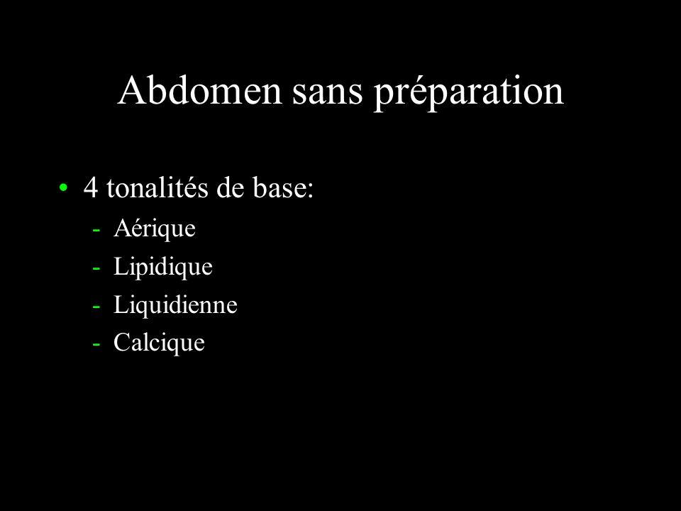 Abdomen sans préparation