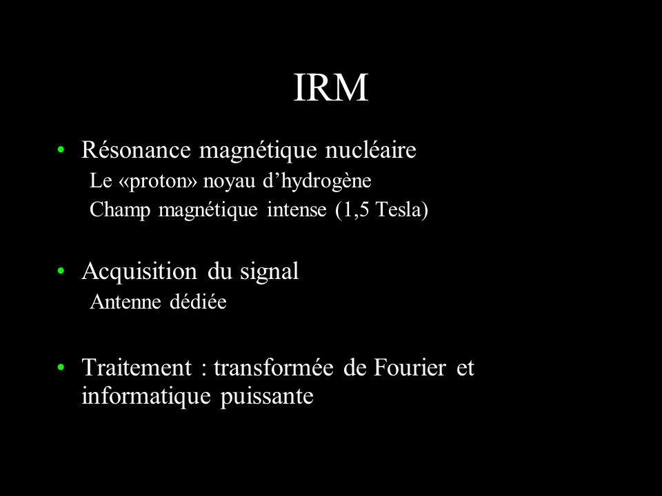 IRM Résonance magnétique nucléaire Acquisition du signal