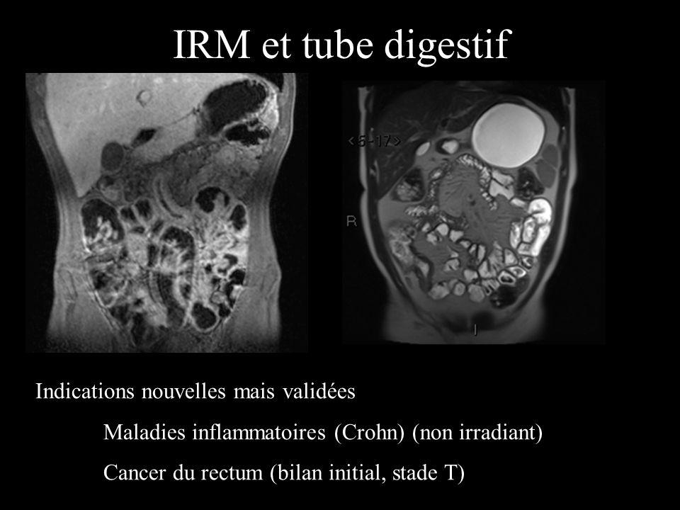 IRM et tube digestif Indications nouvelles mais validées