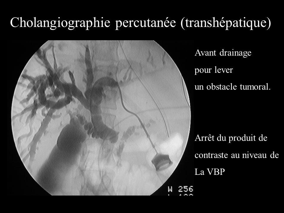 Cholangiographie percutanée (transhépatique)