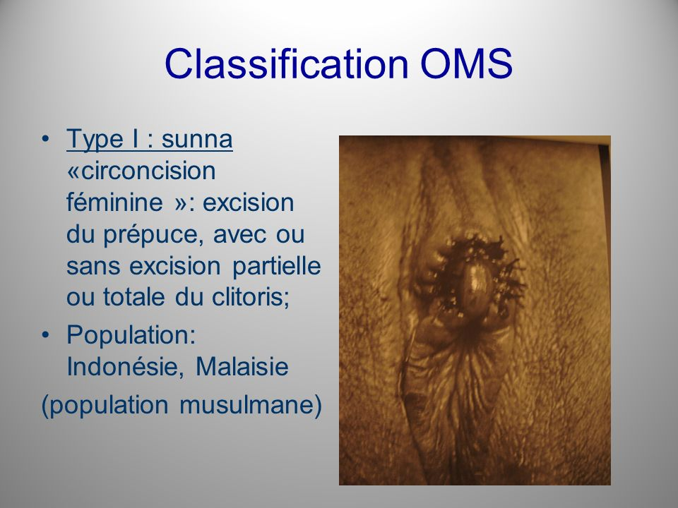 Classification OMS Type I : sunna «circoncision féminine »: excision du prépuce, avec ou sans excision partielle ou totale du clitoris;