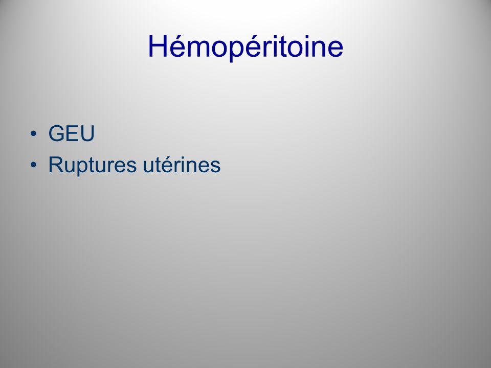 Hémopéritoine GEU Ruptures utérines