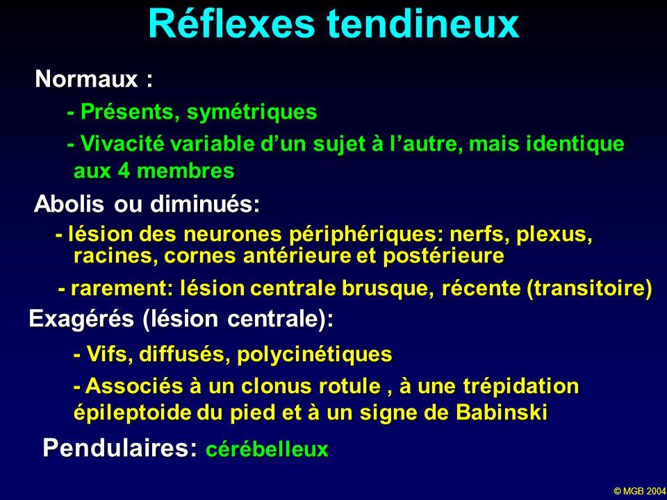 Réflexes tendineux Pendulaires: cérébelleux Normaux :