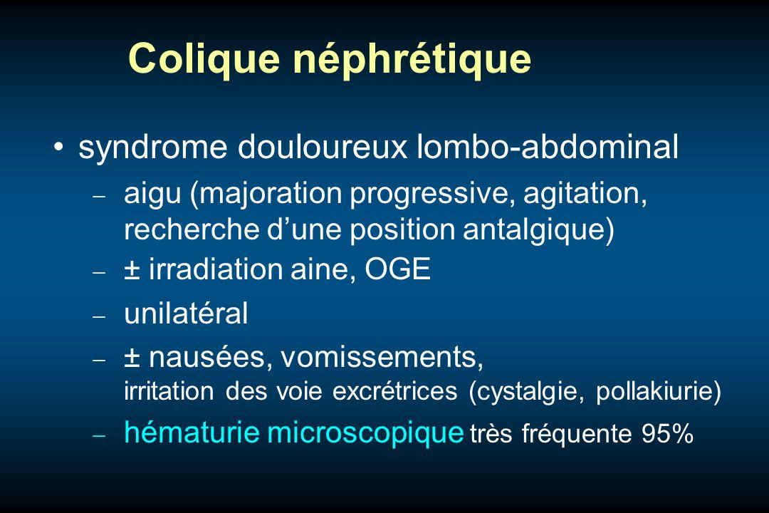 Colique néphrétique syndrome douloureux lombo-abdominal