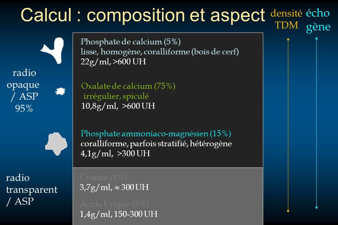 Calcul : composition et aspect