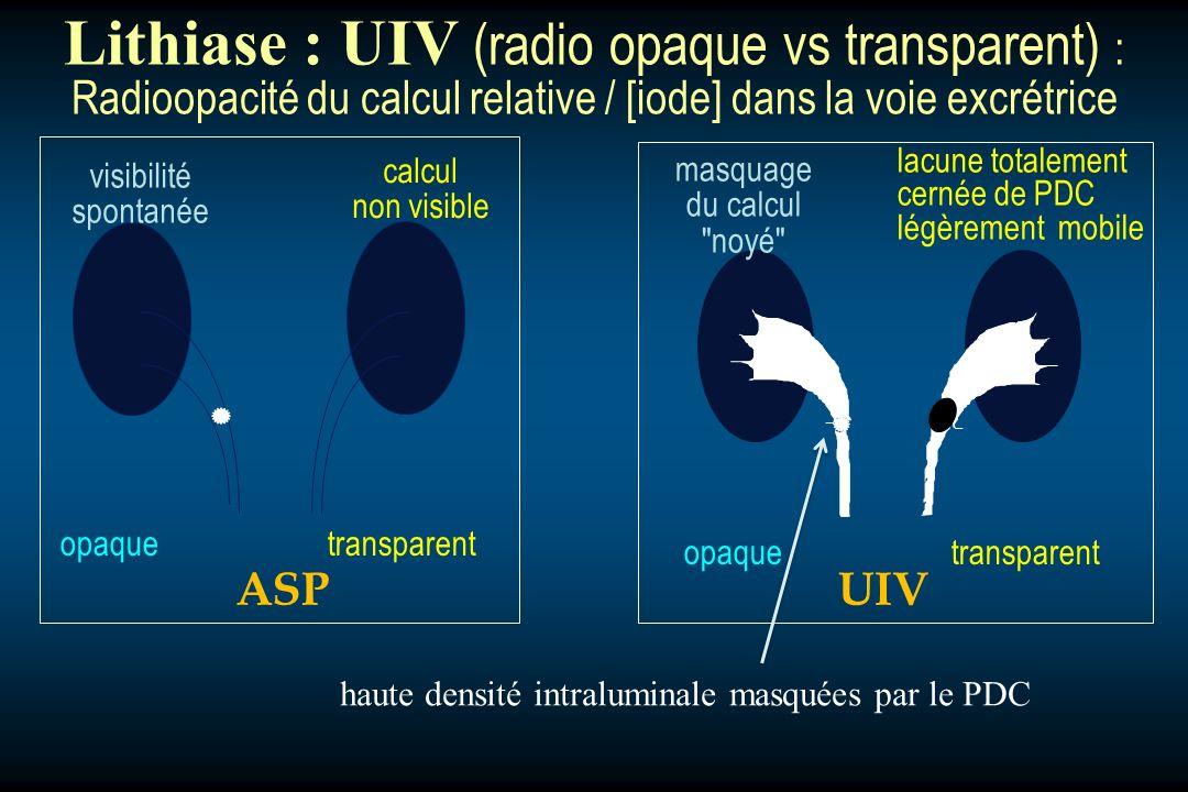 Lithiase : UIV (radio opaque vs transparent) :