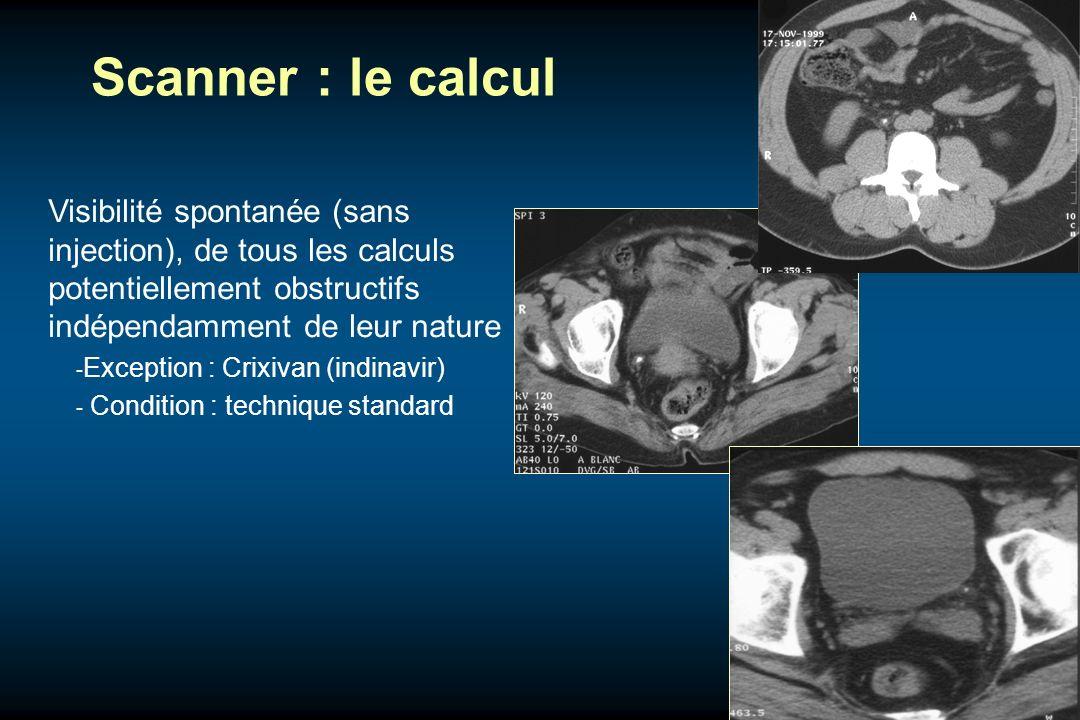 Scanner : le calculVisibilité spontanée (sans injection), de tous les calculs potentiellement obstructifs indépendamment de leur nature.
