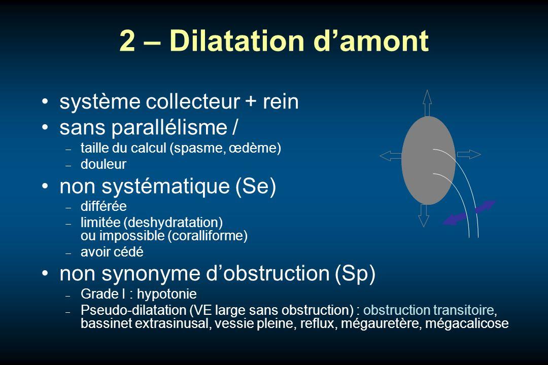 2 – Dilatation d'amont système collecteur + rein sans parallélisme /
