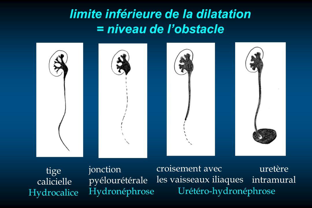 limite inférieure de la dilatation