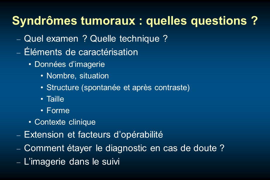 Syndrômes tumoraux : quelles questions