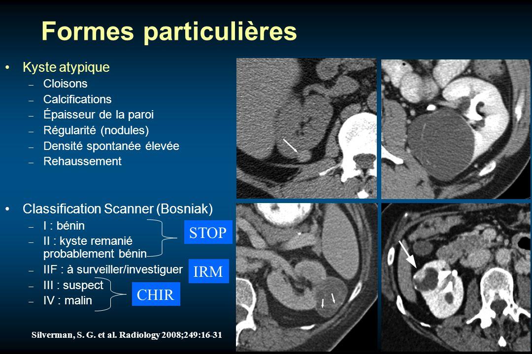 Formes particulières STOP IRM CHIR Kyste atypique
