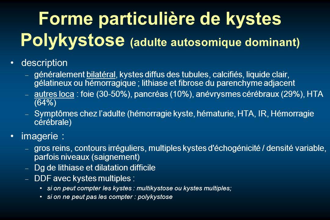 Forme particulière de kystes Polykystose (adulte autosomique dominant)