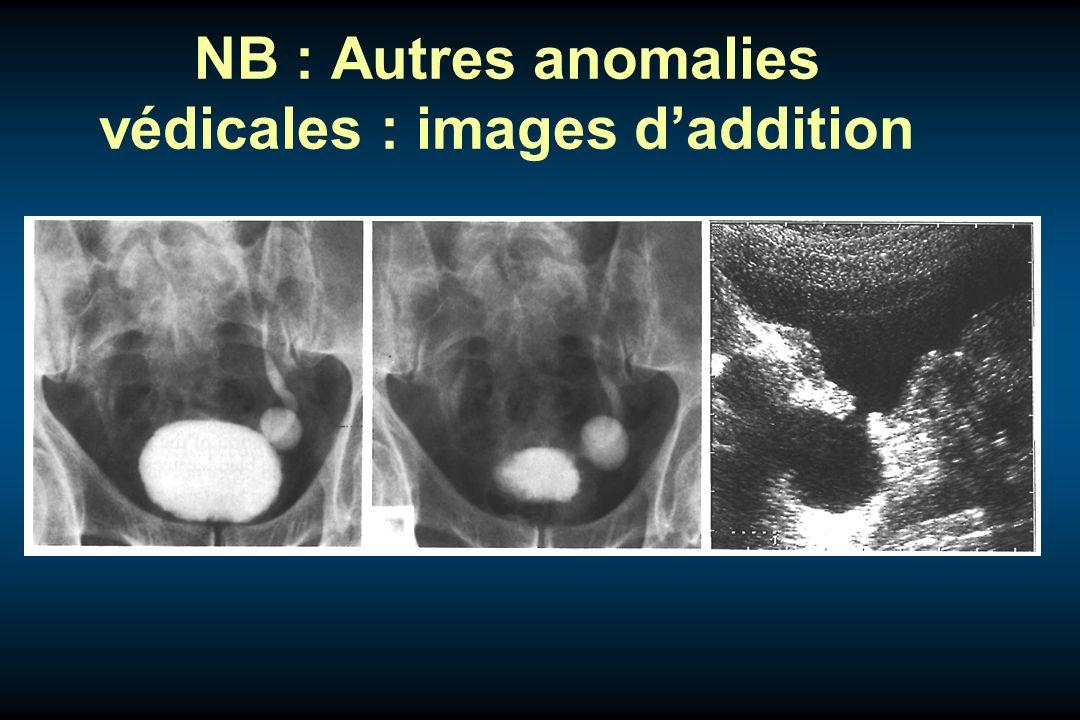 NB : Autres anomalies védicales : images d'addition