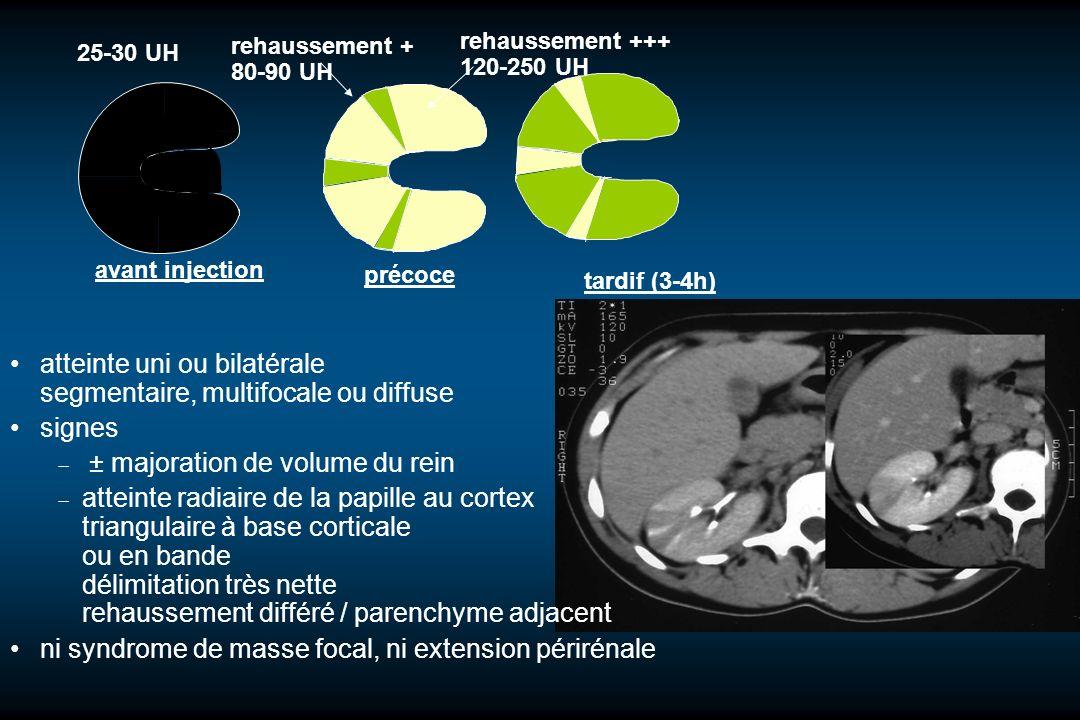 atteinte uni ou bilatérale segmentaire, multifocale ou diffuse signes