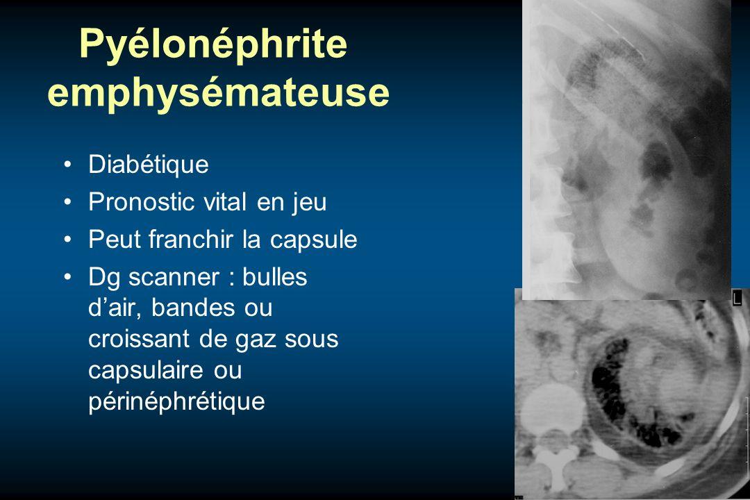 Pyélonéphrite emphysémateuse