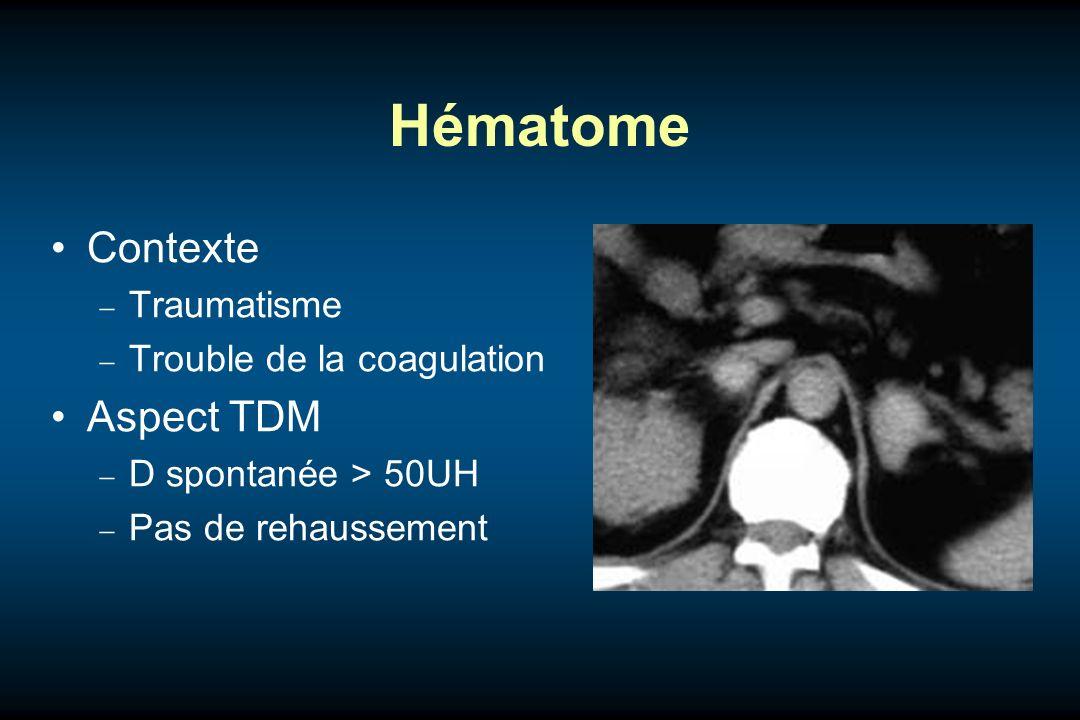 Hématome Contexte Aspect TDM Traumatisme Trouble de la coagulation