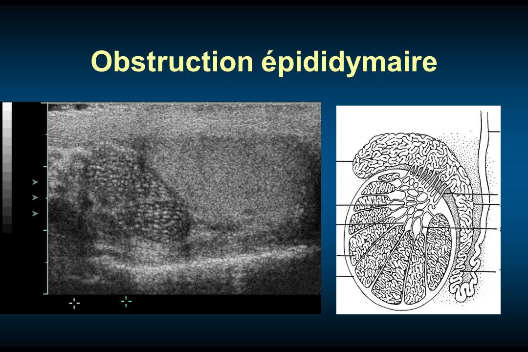 Obstruction épididymaire