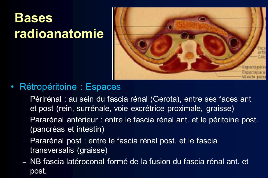 Bases radioanatomie Rétropéritoine : Espaces