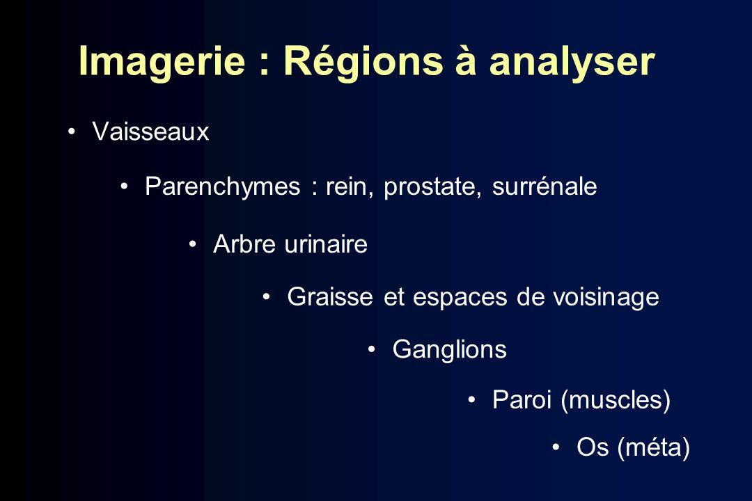 Imagerie : Régions à analyser