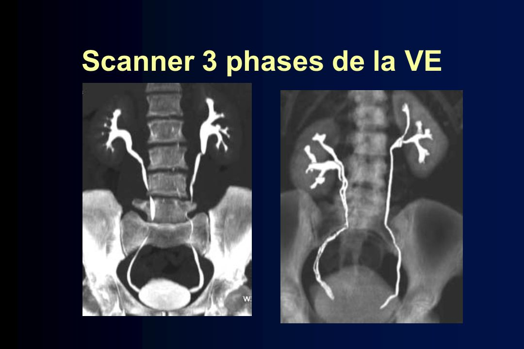 Scanner 3 phases de la VE