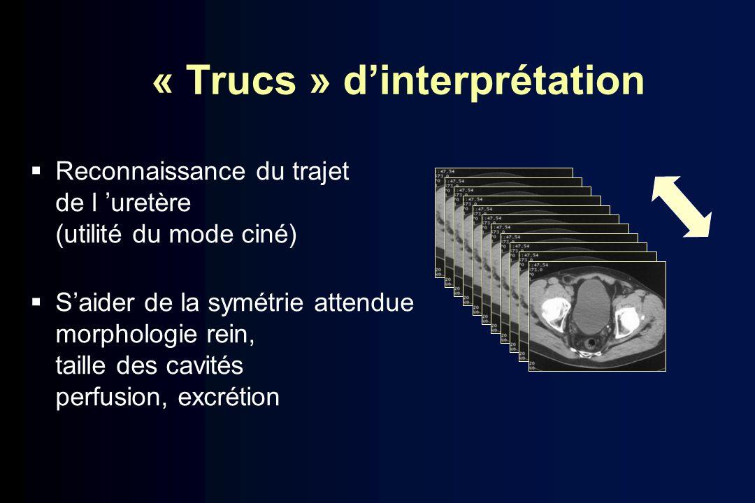 « Trucs » d'interprétation