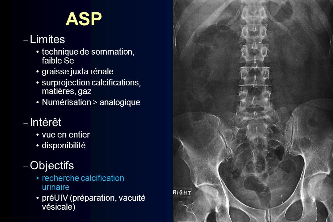 ASP Limites Intérêt Objectifs technique de sommation, faible Se