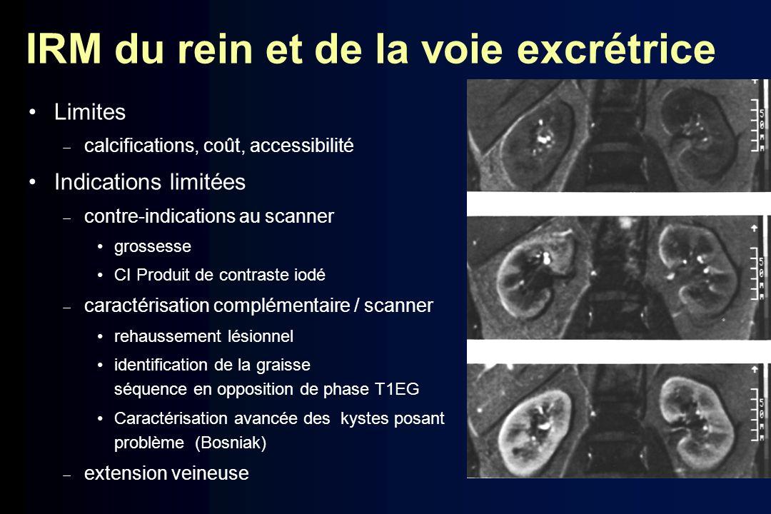 IRM du rein et de la voie excrétrice