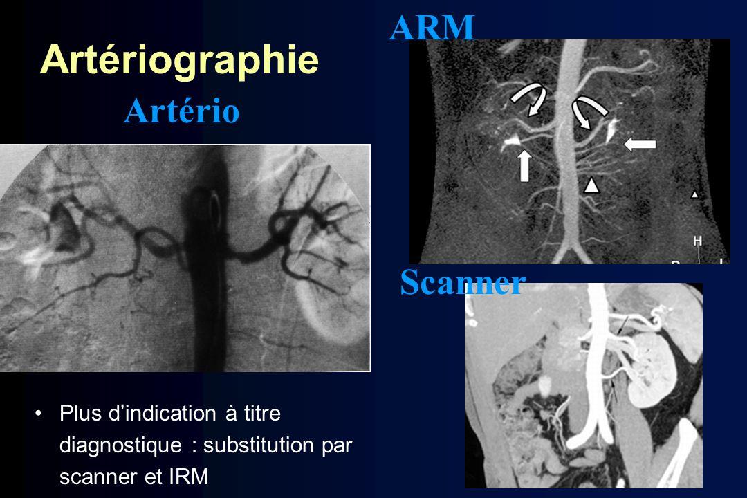 Artériographie ARM Artério Scanner