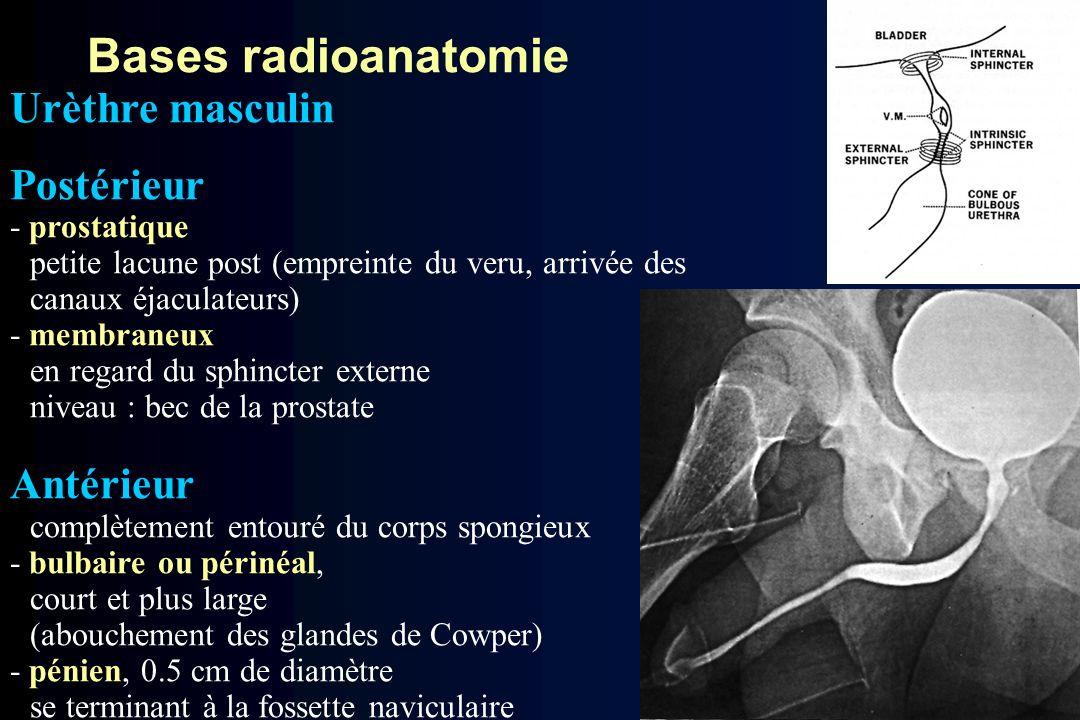 Bases radioanatomie Urèthre masculin Postérieur