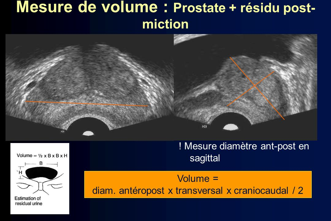 Mesure de volume : Prostate + résidu post-miction