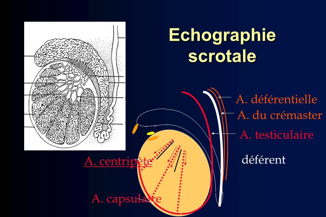 Echographie scrotale A. déférentielle A. du crémaster A. testiculaire