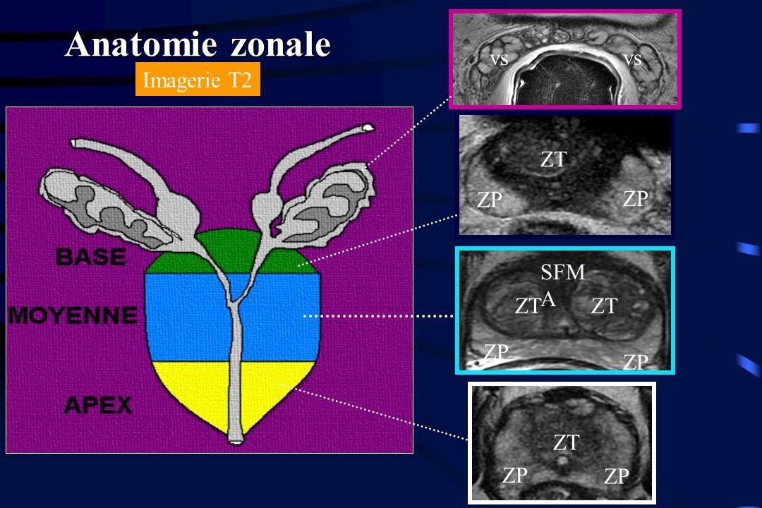 Anatomie zonale vs vs Imagerie T2 ZT ZP ZP SFMA ZT ZT ZP ZP ZT ZP ZP
