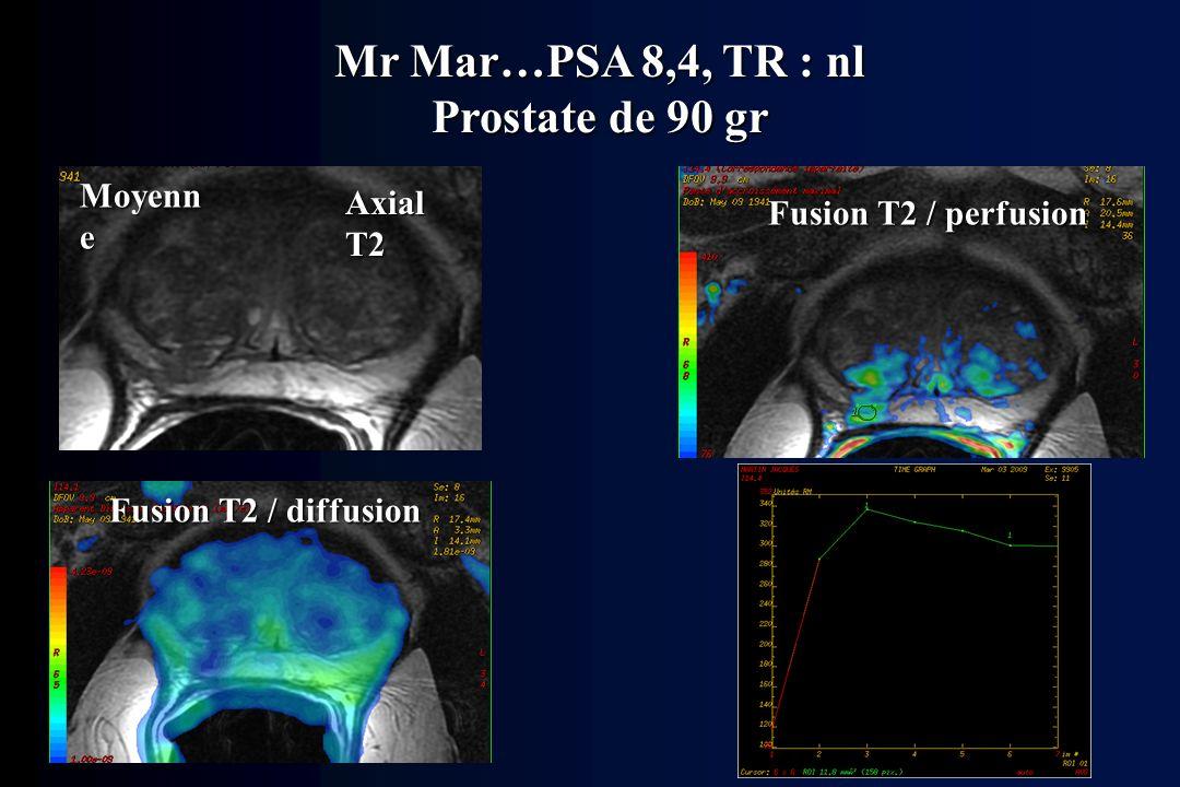 Mr Mar…PSA 8,4, TR : nl Prostate de 90 gr