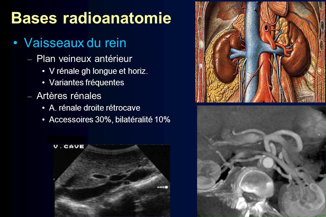 Bases radioanatomie Vaisseaux du rein Plan veineux antérieur