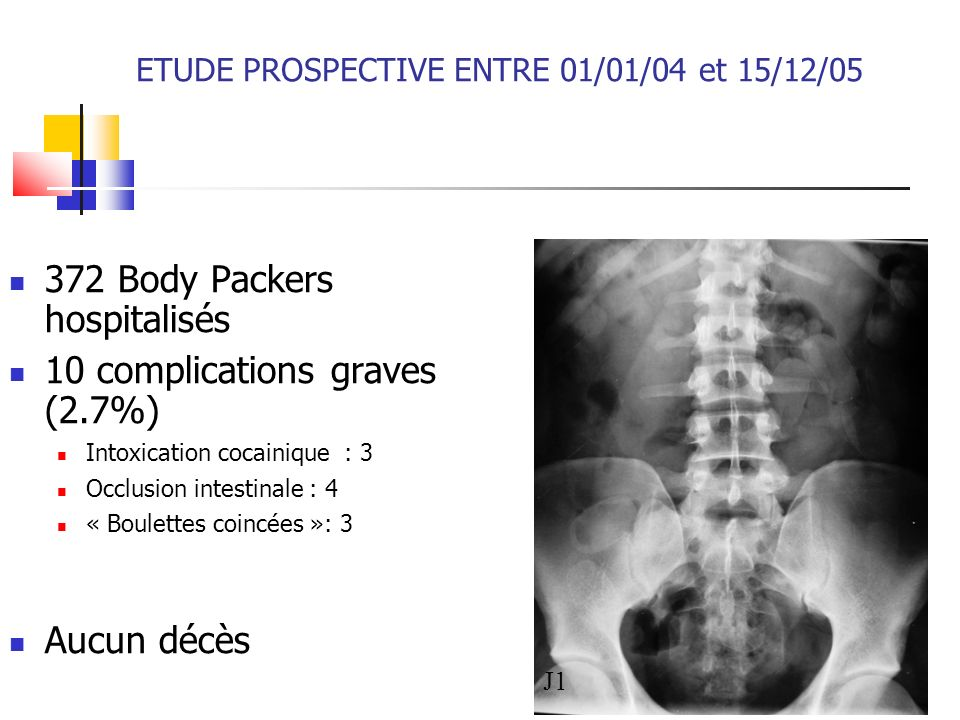 ETUDE PROSPECTIVE ENTRE 01/01/04 et 15/12/05