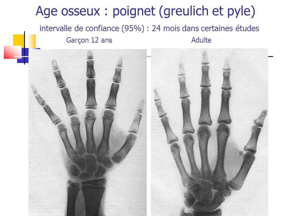 Age osseux : poignet (greulich et pyle) intervalle de confiance (95%) : 24 mois dans certaines études Garçon 12 ans Adulte