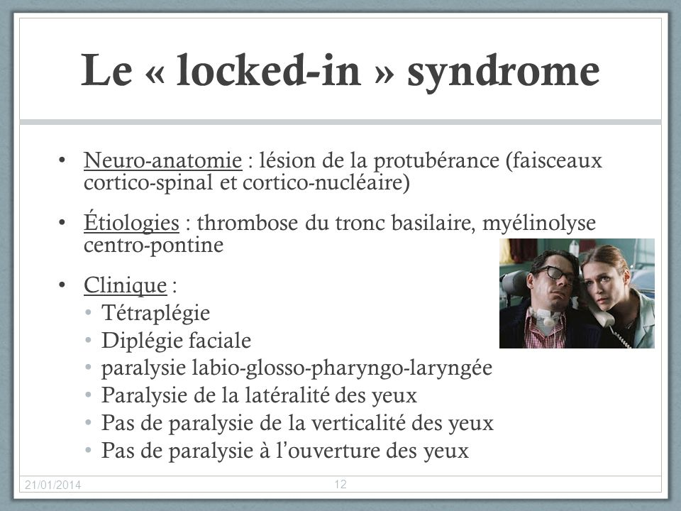Le « locked-in » syndrome