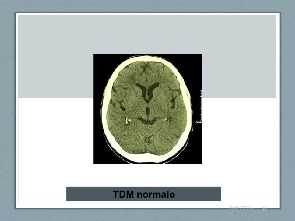 TDM normale 26/03/2017