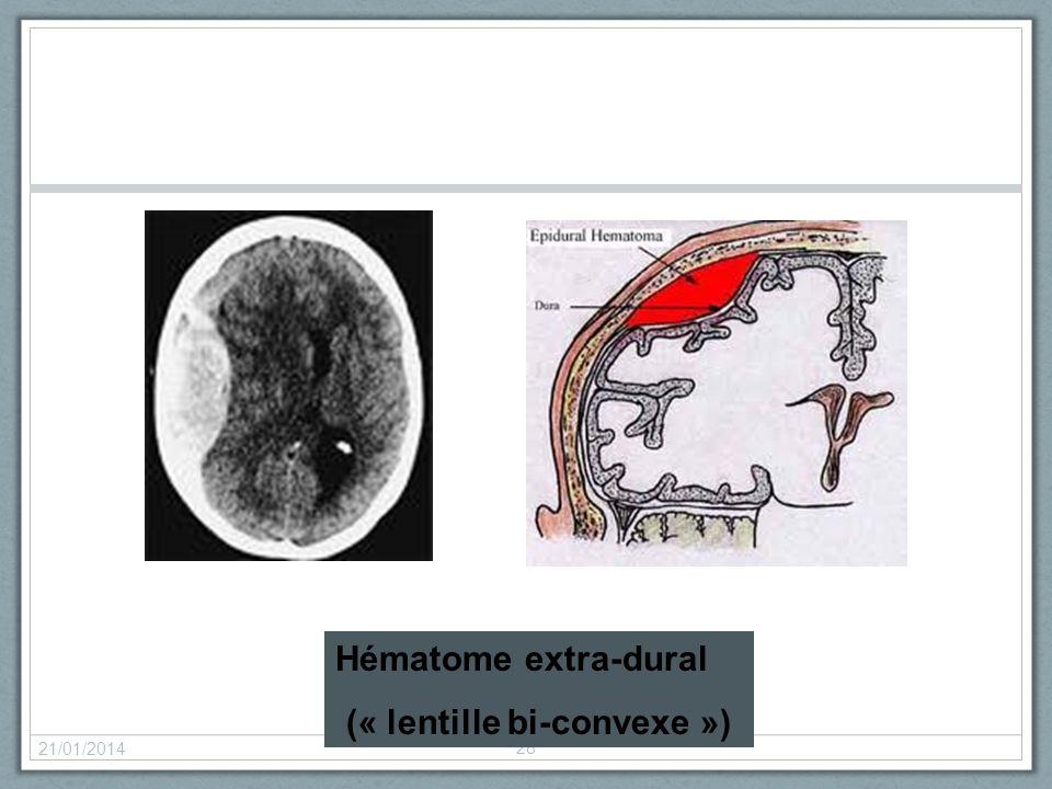 (« lentille bi-convexe »)