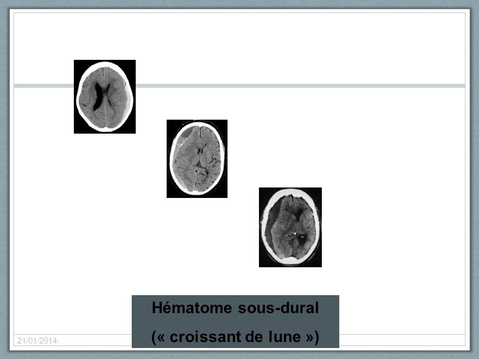 Hématome sous-dural (« croissant de lune »)