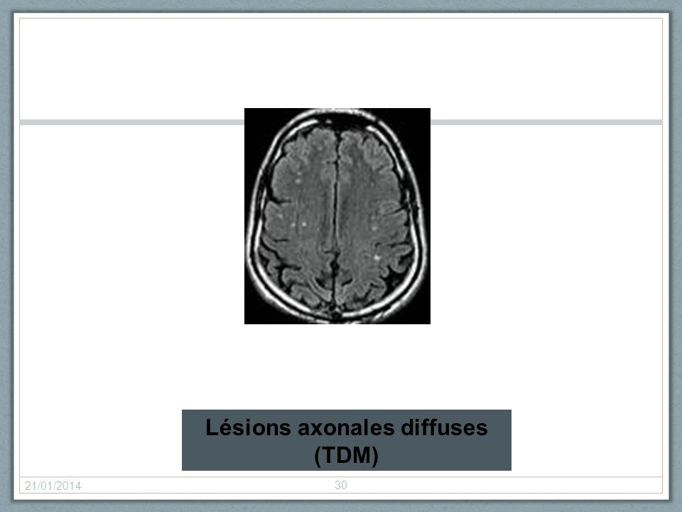 Lésions axonales diffuses (TDM)
