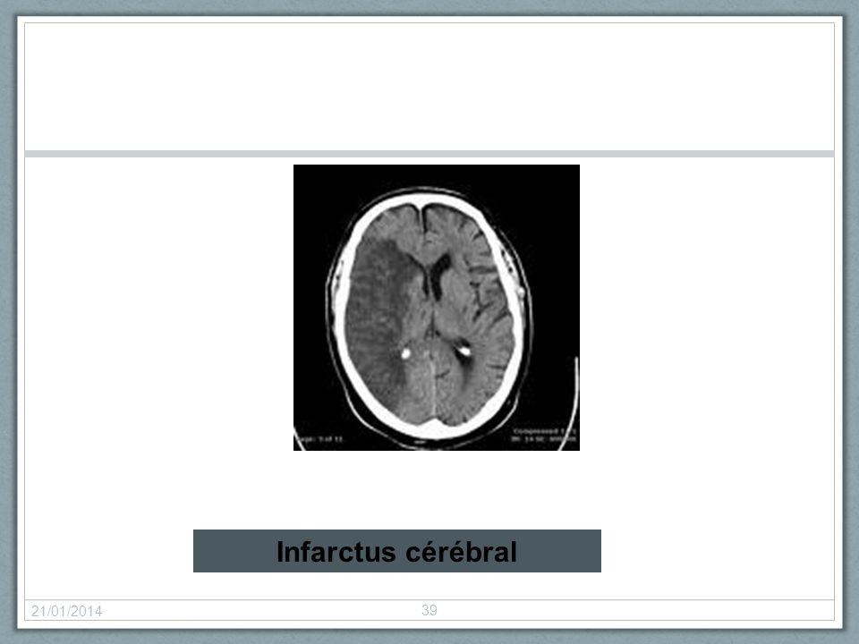 Infarctus cérébral 26/03/2017