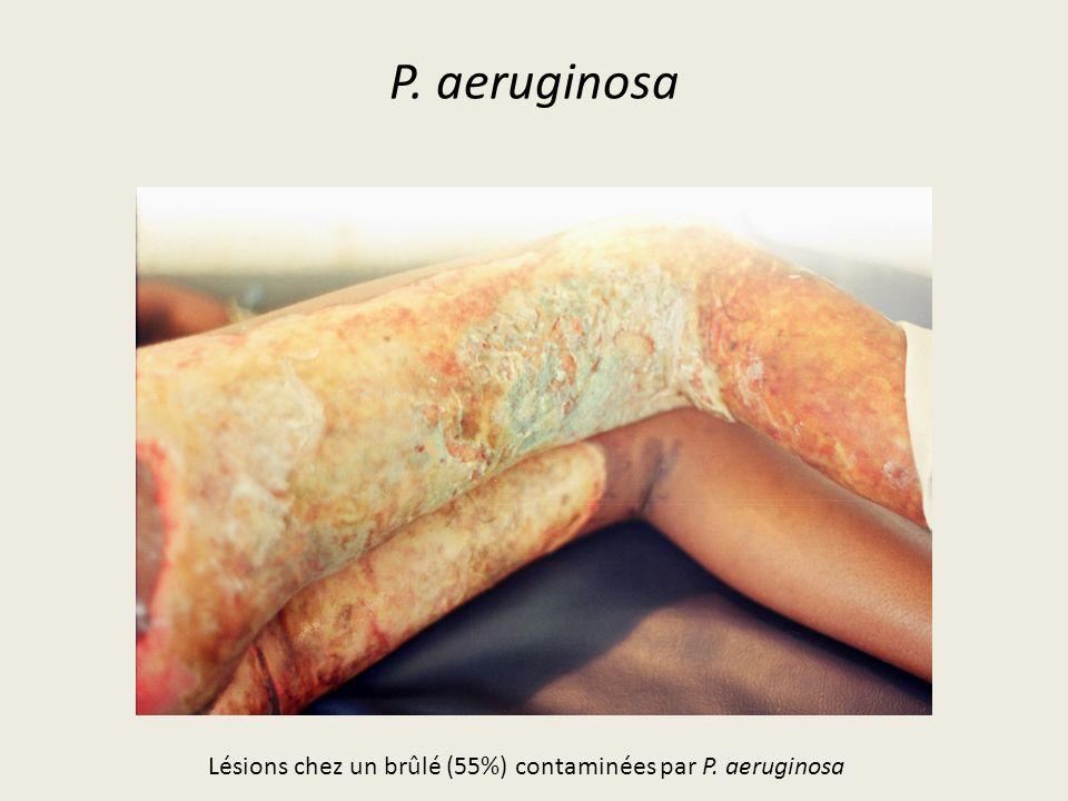 P. aeruginosa Lésions chez un brûlé (55%) contaminées par P. aeruginosa