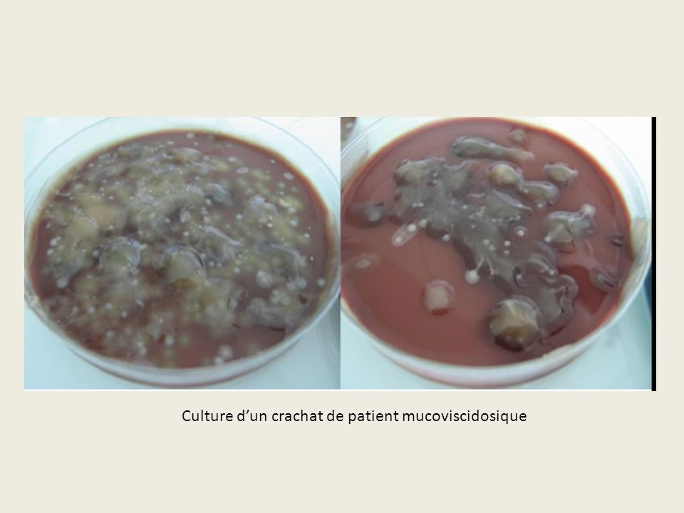Culture d'un crachat de patient mucoviscidosique