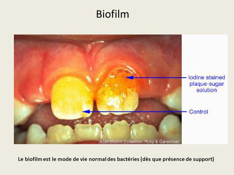 Biofilm Le biofilm est le mode de vie normal des bactéries (dès que présence de support)