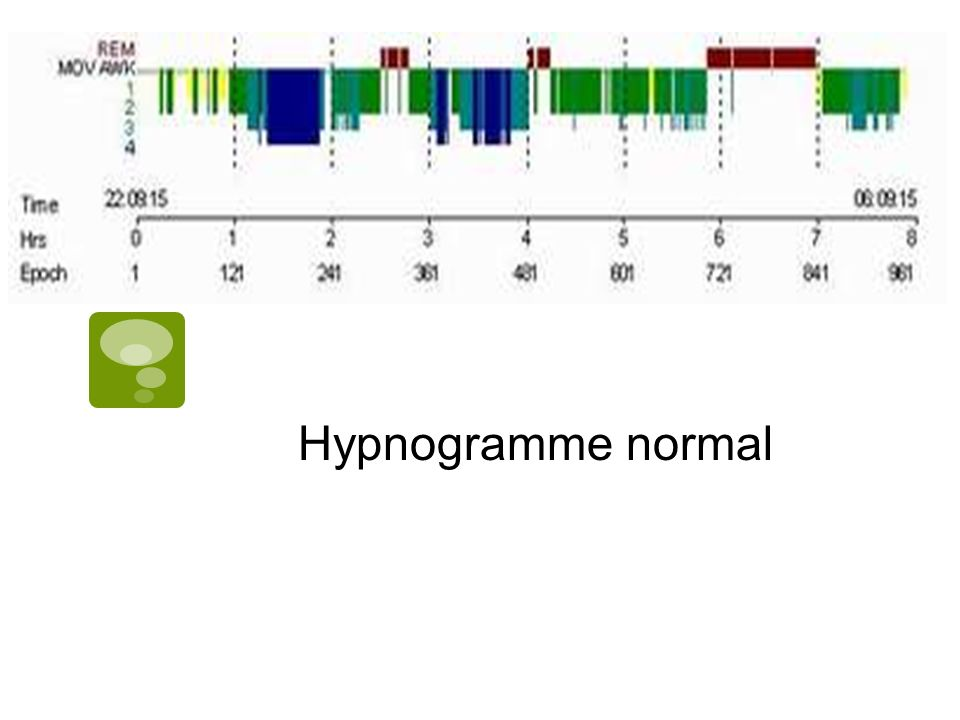 Hypnogramme normal