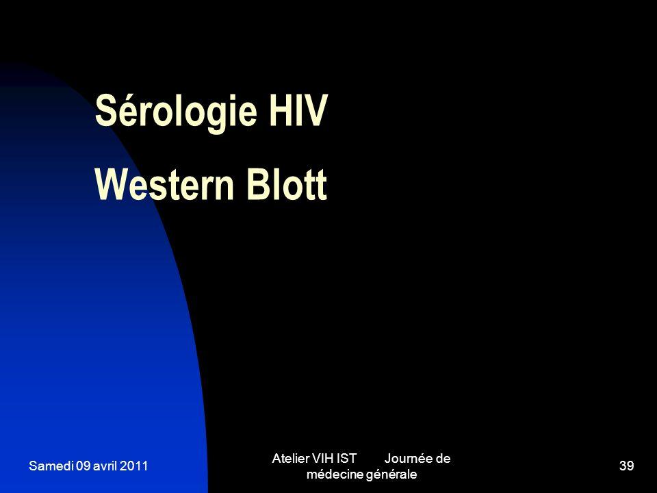 Sérologie HIV Western Blott