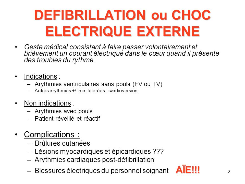Choc électrique arythmie