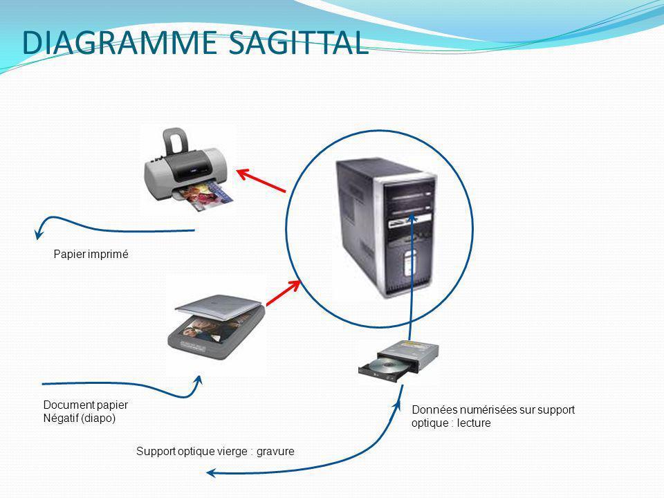 DIAGRAMME SAGITTAL Papier imprimé Document papier Négatif (diapo)