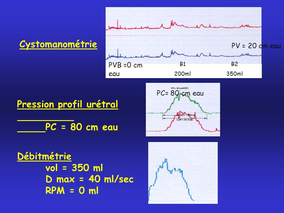 Pression profil urétral PC = 80 cm eau